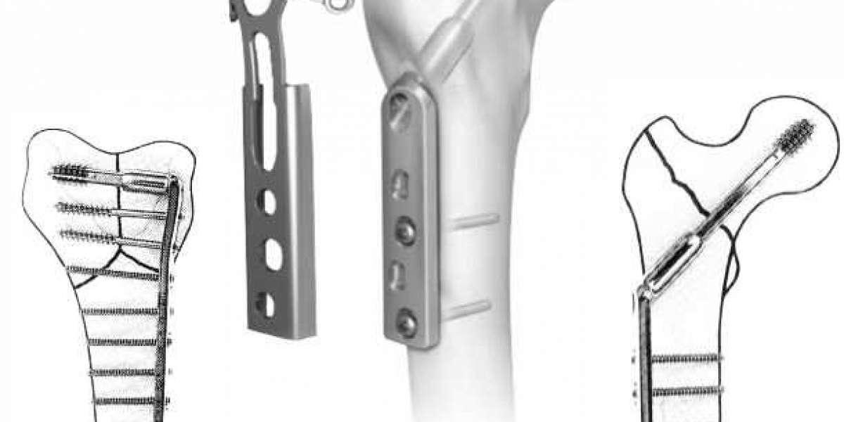 International Standard Quality orthopedic trauma implants
