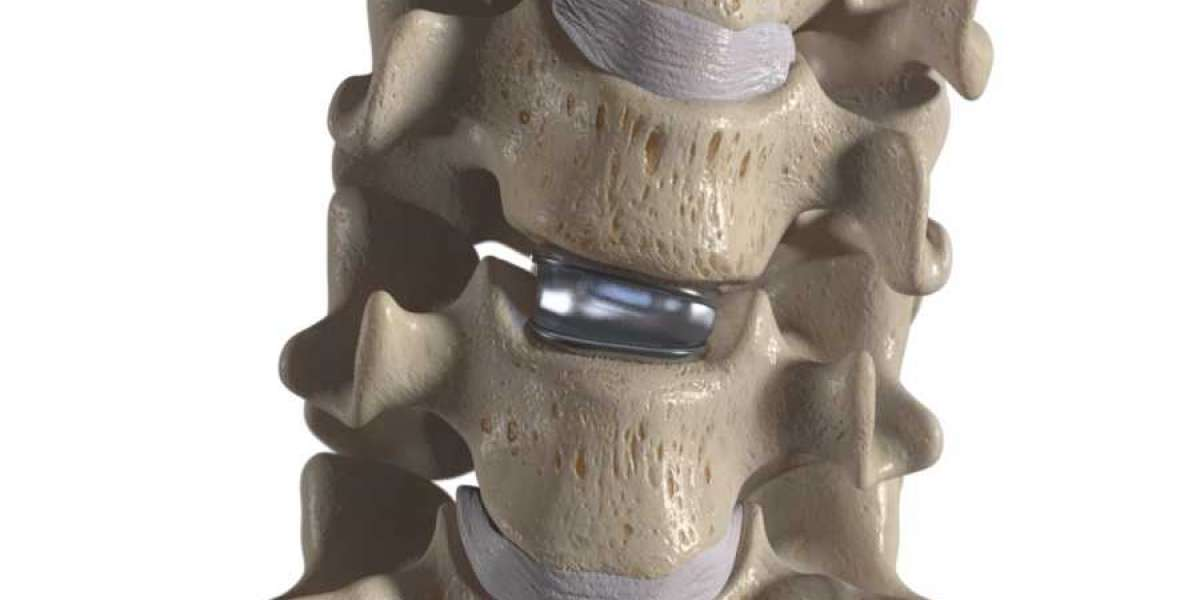 What is Lumbar Disc Replacement?